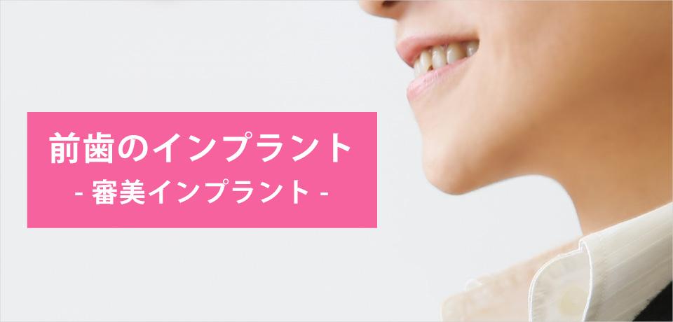 前歯のインプラント -審美インプラント-